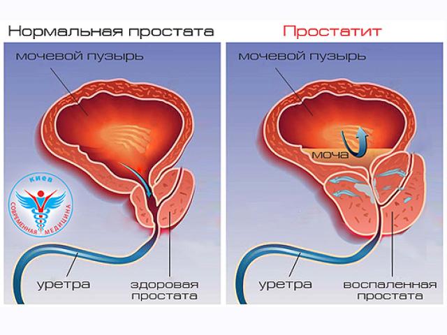 Болезни простаты и мочевого пузыря